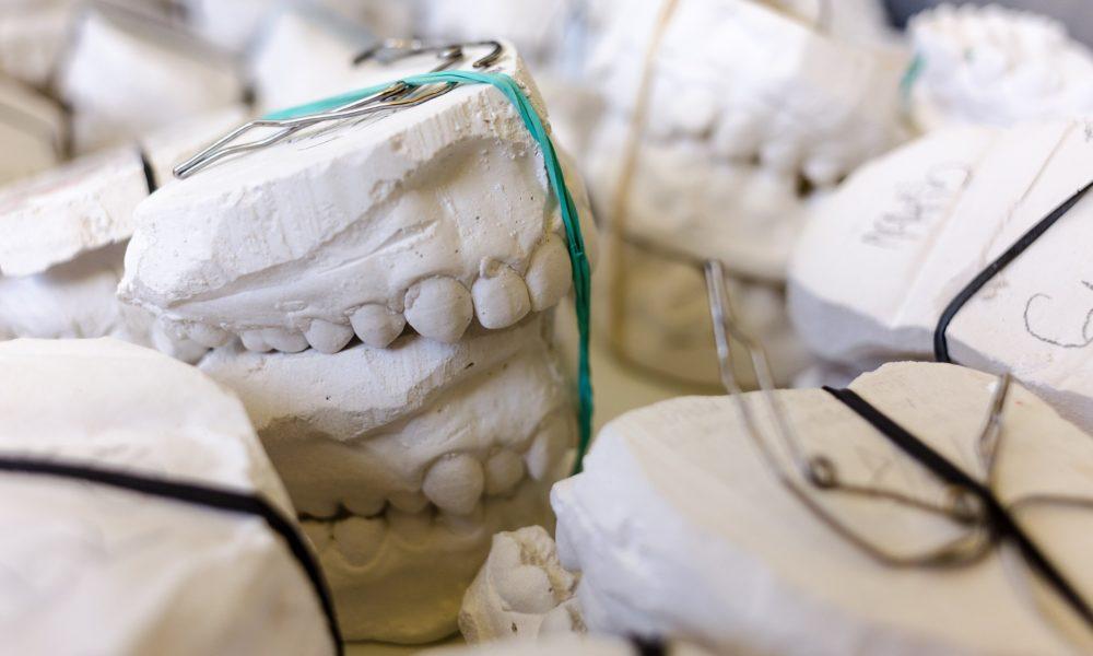 Złe podejście odżywiania się to większe niedostatki w jamie ustnej natomiast również ich brak